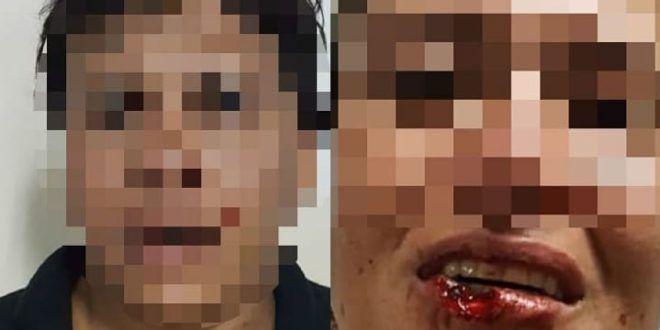 Policiais da 4ª DDP de Aparecida prendem homem que arrancou pedaço do lábio da companheira